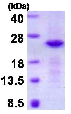 SDS-PAGE - Recombinant Human CRYGN protein (denatured) (ab130035)