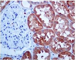 Immunohistochemistry (Formalin/PFA-fixed paraffin-embedded sections) - Anti-HGD antibody [EPR7874] (ab131035)