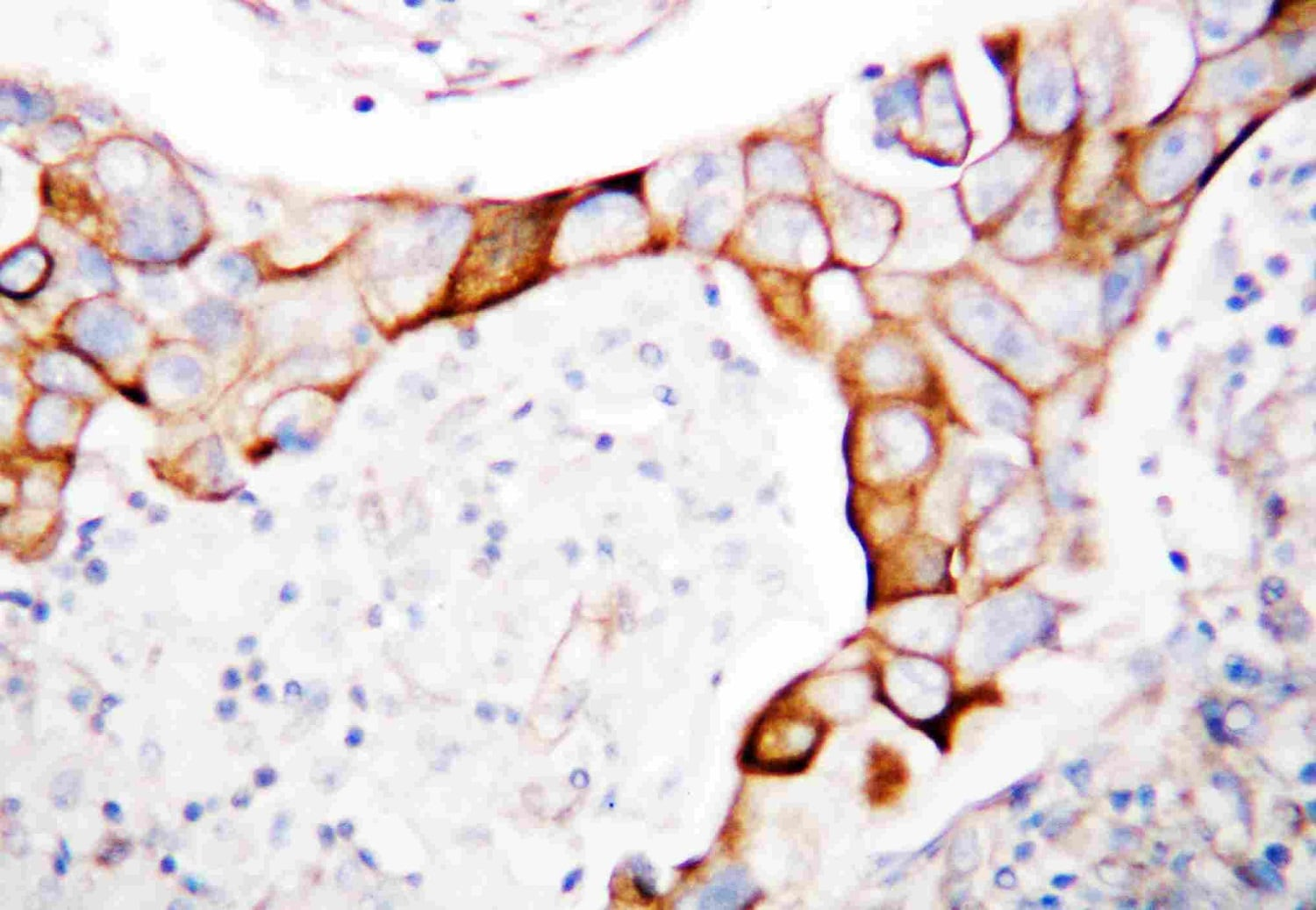 Immunohistochemistry (Formalin/PFA-fixed paraffin-embedded sections) - Anti-CD18 antibody (ab131044)