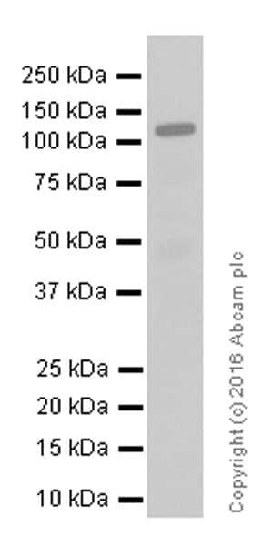 免疫印迹-抗雄激素受体抗体[EPR1535(2)](ab133273)