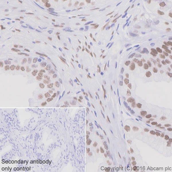 免疫组织化学(福尔马林/PFA固定石蜡切片)-抗雄激素受体抗体[EPR1535(2)](ab133273)