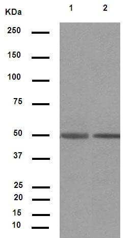 Western blot - Anti-IgG1 + IgG2a + IgG3 antibody [M204-3] (ab133469)