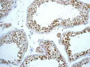 免疫组织化学(福尔马林/PFA固定石蜡切片)-抗Rad51抗体[EPR4030(3)](ab133534)