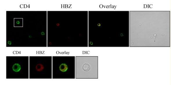 Immunocytochemistry/ Immunofluorescence - Anti-CD4 antibody [EPR6855] (ab133616)