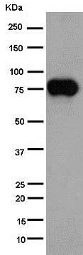Western blot - Anti-CD36 antibody [EPR6573] (ab133625)