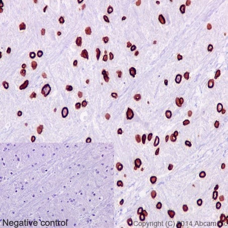 Immunohistochemistry (Formalin/PFA-fixed paraffin-embedded sections) - Anti-Lamin B1 antibody [EPR8985(B)] (ab133741)