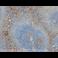 Immunohistochemistry (Formalin/PFA-fixed paraffin-embedded sections) - Anti-VCAM1 antibody [EPR5047] (ab134047)