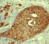 Immunohistochemistry (Formalin/PFA-fixed paraffin-embedded sections) - Anti-proCathepsin D antibody [EPR3054] (ab134169)