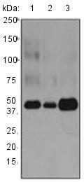 Western blot - Anti-proCathepsin D antibody [EPR3054] (ab134169)