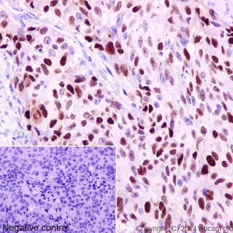免疫组化(福尔马林/PFA固定石蜡切片)抗细胞周期蛋白D1抗体[EPR2241] -C-末端(AB134175)