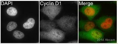 免疫细胞化学/免疫荧光抗细胞周期蛋白D1抗体[EPR2241] -C-末端(AB134175)