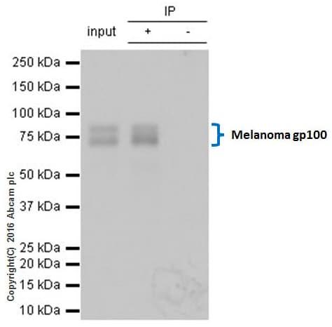 Immunoprecipitation - Anti-Melanoma gp100 antibody [EP4863(2)] (ab137078)