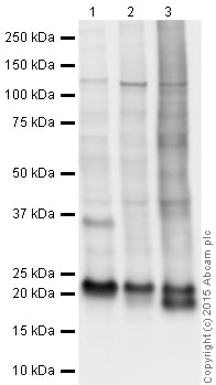 Western blot - Anti-TAGLN/Transgelin antibody (ab14106)