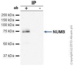Immunoprecipitation - Anti-NUMB antibody (ab14140)