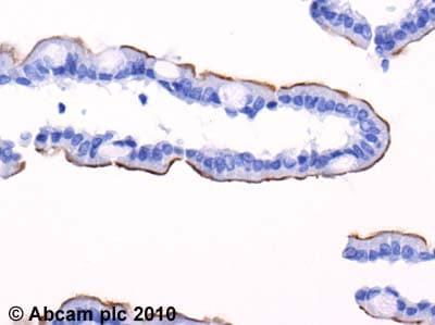 Immunohistochemistry (Formalin/PFA-fixed paraffin-embedded sections) - Anti-SGLT1 antibody (ab14685)