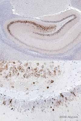 Immunohistochemistry (Formalin/PFA-fixed paraffin-embedded sections) - Anti-COX2 / Cyclooxygenase 2 antibody (ab15191)