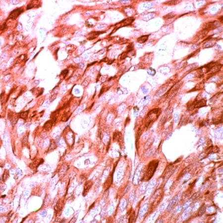 Immunohistochemistry (Formalin/PFA-fixed paraffin-embedded sections) - Anti-S100 antibody, prediluted (ab15521)