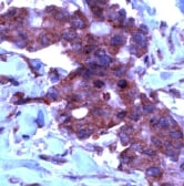 Immunohistochemistry (Formalin/PFA-fixed paraffin-embedded sections) - Anti-TIMP2 antibody - N-terminal, prediluted (ab15560)