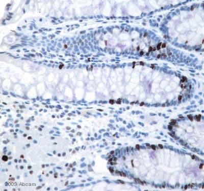 Immunohistochemistry (Formalin/PFA-fixed paraffin-embedded sections) - Anti-Ki67 antibody (ab15580)