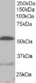 Western blot - Anti-Integrin linked ILK antibody (ab15838)