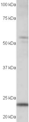 Western blot - Anti-MAD4 antibody (ab15841)