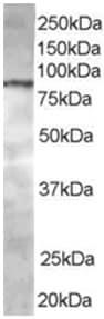 Western blot - Anti-CENTB1 antibody (ab15903)