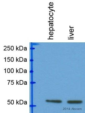 Western blot - Anti-Parkin antibody (ab15954)