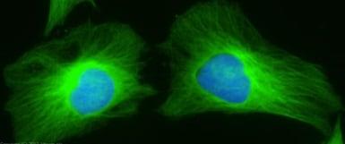Immunocytochemistry/ Immunofluorescence - Donkey Anti-Rabbit IgG H&L (Alexa Fluor® 488) preadsorbed (ab150061)