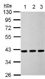 Western blot - Anti-Calponin 3 antibody (ab151427)