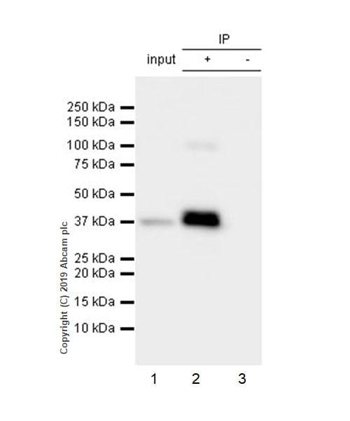 Immunoprecipitation - Anti-p53R2 antibody [EPR8816] (ab154194)