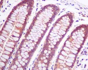 Immunohistochemistry (Formalin/PFA-fixed paraffin-embedded sections) - Anti-p53R2 antibody [EPR8816] (ab154194)