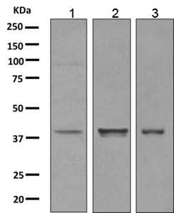 Western blot - Anti-p53R2 antibody [EPR8816] (ab154194)