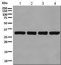 Western blot - Anti-VDAC1 / Porin antibody [EPR10852(B)] - Mitochondrial Loading Control (ab154856)