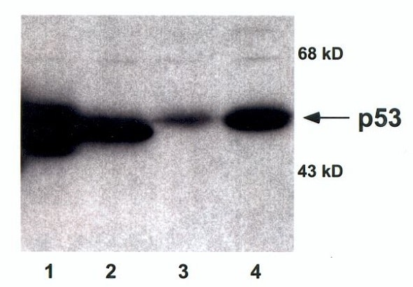 Western blot - Anti-p53 antibody (ab16121)