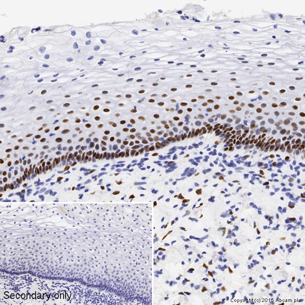 Immunohistochemistry (Formalin/PFA-fixed paraffin-embedded sections) - Anti-Estrogen Receptor alpha antibody [SP1] (ab16660)