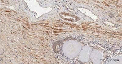 Immunohistochemistry (Formalin/PFA-fixed paraffin-embedded sections) - Anti-FGF basic antibody (ab16828)