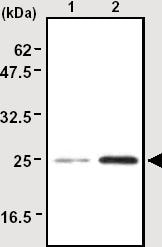 Immunoprecipitation - Anti-SOD2/MnSOD antibody [4F10] (ab16958)