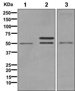 Western blot - Anti-VMAT1 antibody [EPR6476] (ab168347)