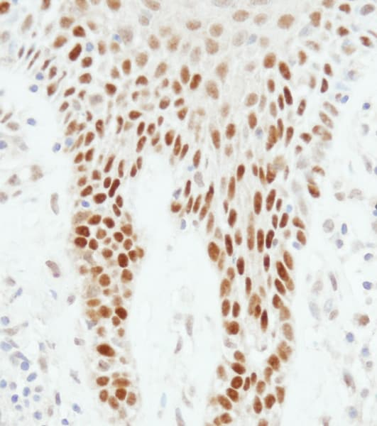 Immunohistochemistry (Formalin/PFA-fixed paraffin-embedded sections) - Anti-p53 antibody (ab17990)