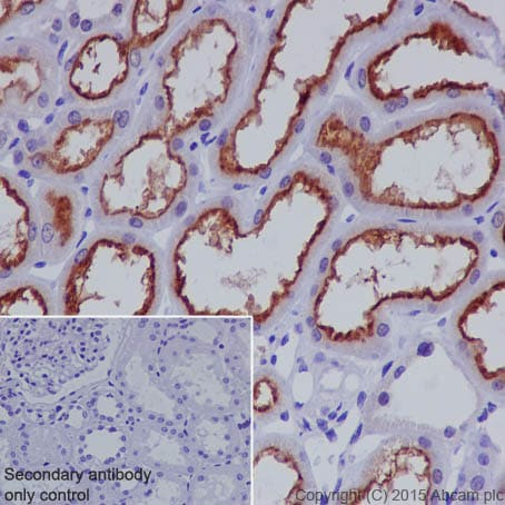 Immunohistochemistry (Formalin/PFA-fixed paraffin-embedded sections) - Anti-P Glycoprotein antibody [EPR10364-57] (ab170904)