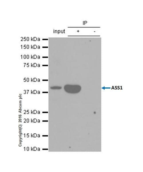 Immunoprecipitation - Anti-ASS1 antibody [EPR12398] (ab170952)