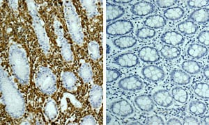 Immunohistochemistry (Formalin/PFA-fixed paraffin-embedded sections) - Rabbit IgG, monoclonal [EPR25A] - Isotype Control (ab172730)