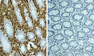 免疫组织化学(福尔马林/PFA固定石蜡包埋切片)-兔IgG,单克隆[EPR25A]-同型对照(ab172730)