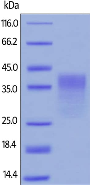 SDS-PAGE - Recombinant human PD1 protein (ab174035)