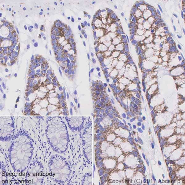 Immunohistochemistry (Formalin/PFA-fixed paraffin-embedded sections) - Anti-Pyruvate Dehydrogenase E1-alpha subunit (phospho S293) antibody [EPR12200] (ab177461)