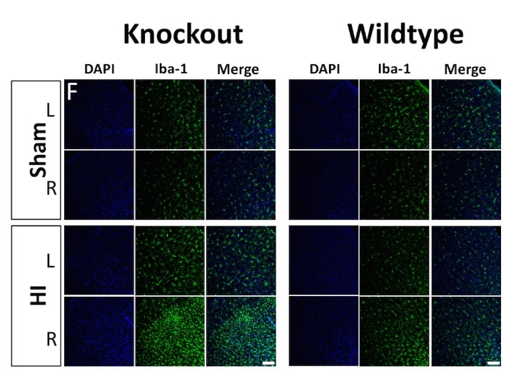 Immunohistochemistry (Formalin/PFA-fixed paraffin-embedded sections) - Anti-Iba1 antibody [EPR16589] (ab178847)