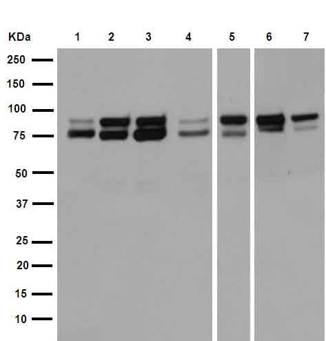 Western印迹-抗IKKα+IKKβ抗体[EPR16628 ](AB17870)