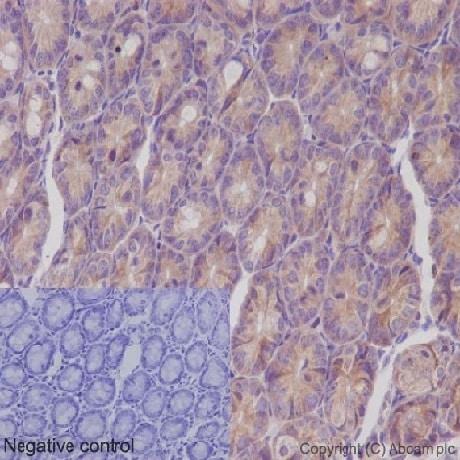 Immunohistochemistry (Formalin/PFA-fixed paraffin-embedded sections) - Anti-IKK gamma/NEMO antibody [EPR16629] (ab178872)