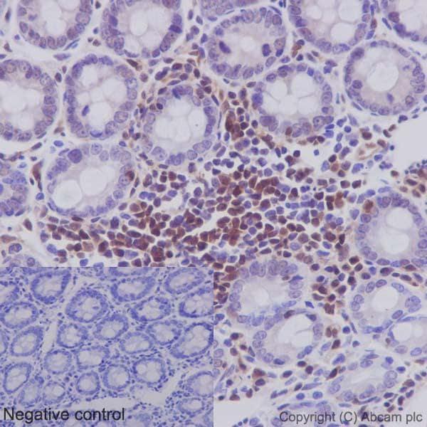 Immunohistochemistry (Formalin/PFA-fixed paraffin-embedded sections) - Anti-STAT5b antibody [EPR16671] (ab178941)
