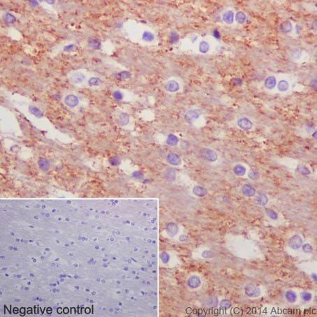 免疫组化(福尔马林/PFA固定石蜡切片)抗β-微管蛋白抗体[EPR1674](AB179513)